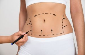 Transferencia de grasa